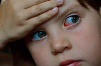 Conjuntivite alérgica: sintomas e tratamento