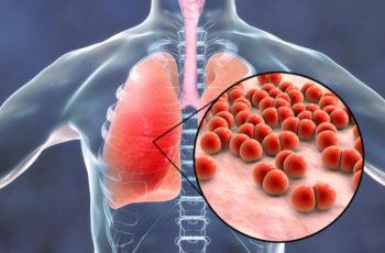 Pneumonia: entenda os diferentes tipos da doença
